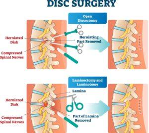 Sciatica surgery types